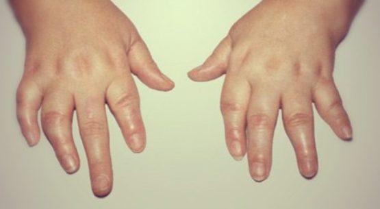 артрит кистей рук фото